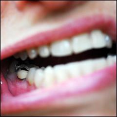 зуб после пломбировки каналов
