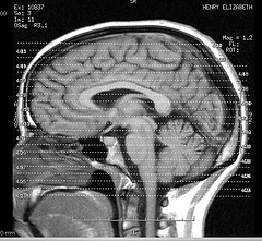 человеческом мозге