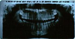 зубов пиявки